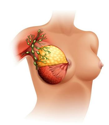Breast Cancer in Dubai