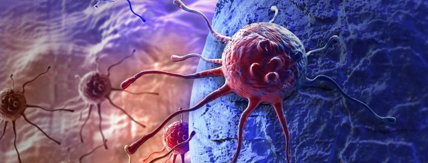 Surface Malignacy Center (HIPC) Cancer Center in Dubai