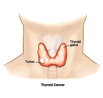 Thyroid Cancer UAE