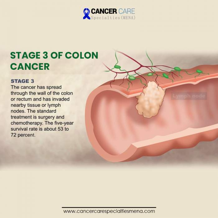 Stage 3 Of Colon Cancer Cancer Care Center Uae Cancer Treatment Center In Dubai Parotid Surgery Liver Oncology In Dubai